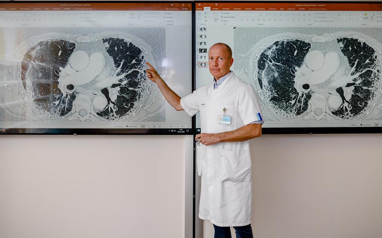 Longartst Leon van den Toorn toont de beschadigingen op de longen van iemand die een coronainfectie heeft gehad.