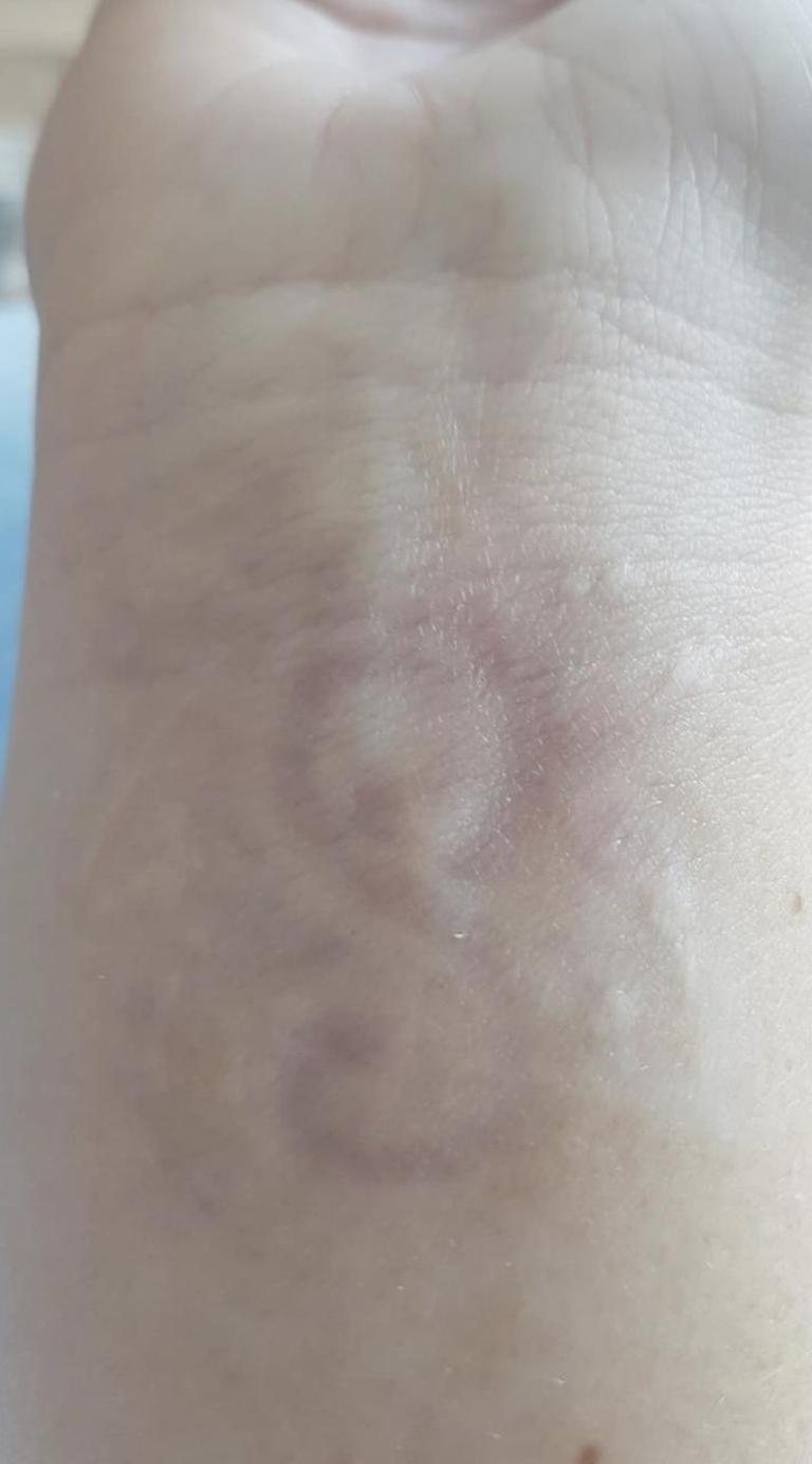Tatoeage na 6 behandelingen