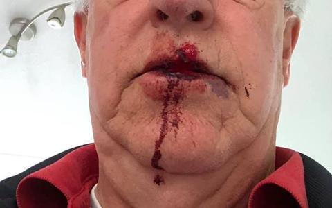 Het gezicht van Henk Rensen uit Meppel na de klap van een wielrenner. Foto: Eigen foto.
