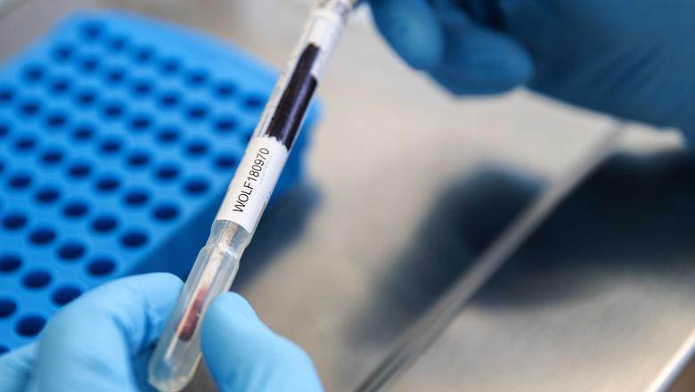 Een onderzoeker bestudeert een DNA-monster. Foto: Archief ANP / Jeroen Jumelet